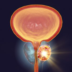 Telix submits FDA application for new prostate cancer imaging product