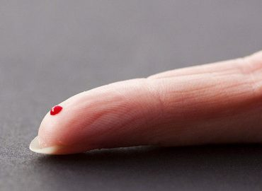 Universal Biosensors enters collaboration to diagnose cancer from a finger prick